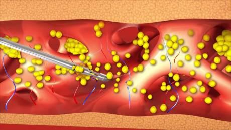 Особенности проведения Water-assisted liposuction