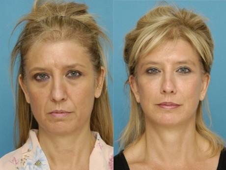 Фотоомоложение лица: до и после
