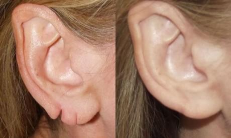 Устранение имеющихся недостатков на мочке уха при помощи пластики: до и после