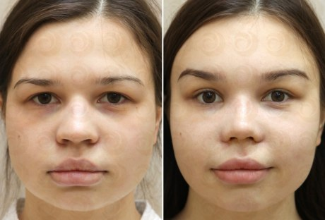 Лифтинг бровей и лба: до и после