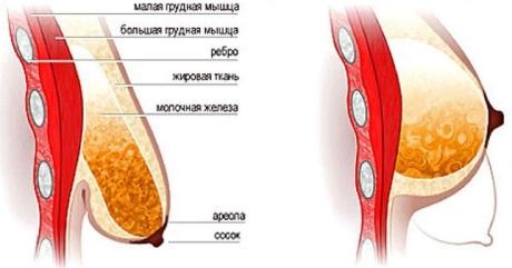 Пластика по подтяжке грудей - особенности процедуры