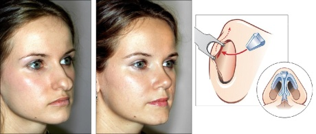 Область кончика носа - ринопластика