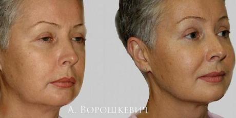 Фейслифтинг эндоскопический: до и после