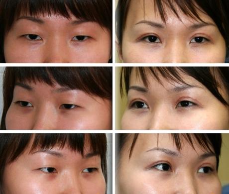 Блефаро пластическая операция для азиатских глаз