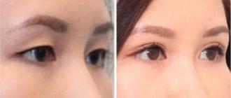 Пластика азиатских глаз, как один из популярных разделов пластической хирургии