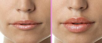 Пластика губ: особенности и разновидности вмешательства