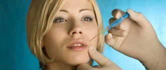 Ботокс губ до и после: стоит ли накачать губы и носогубные складки ботоксом + последствия