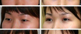 Блефаропластическая операция для азиатских глаз