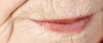 Морщины вокруг губ и мимические морщины вокруг рта: коррекция с помощью масок