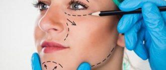 Фейслифтинг – подтяжка кожи лицевой части