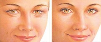 Корректировка глаз с помощью кантопексии и кантопластики
