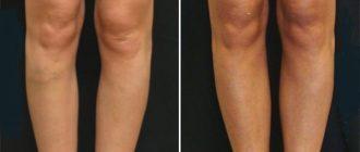 Круропластика голеней. Отзывы клиентов
