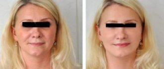 Лифтинг лица: профессиональные методы подтяжки кожи лица