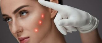 Аппаратная косметология в лице лазерного пилинга