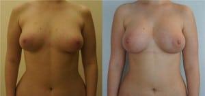 Липофилинг груди: цена вопроса - стоит ли процедура потраченных денег
