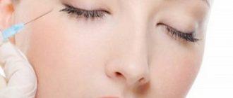 Мезотерапия вокруг глаз: преимущества и побочные эффекты + отзывы