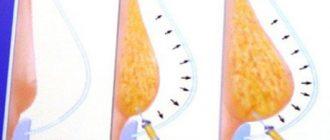 Коррекция размеров груди при помощи липофилинга