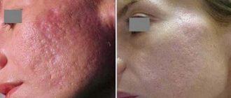 Лазерный пилинг лица: суть процедуры и правила ухода за кожей до и после
