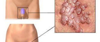 Папилломы в паху: причины и способы лечения