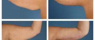 Брахиопластика, подтяжка кожи рук. Отзывы