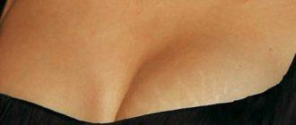 Растяжки на груди: можно ли от них избавиться