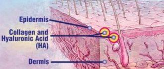 Ботокс или гиалуроновая кислота: сходство и различие препаратов