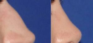 Септопластика носовой перегородки: лечение, последствия, цена