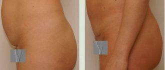 Подтяжка кожи живота: хирургическая и безоперационная