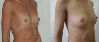 Липофилинг: сколько стоит коррекция тела с помощью собственного жира + фото
